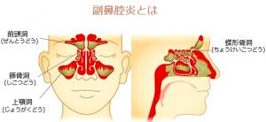 副鼻腔炎とは、鼻腔内の炎症から細菌感染が引き起こされ、副鼻腔内に炎症や細菌感染が拡がり膿がたまった症状です。